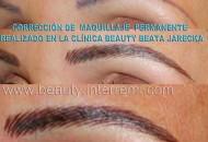 Imagen micropigmentacion-medica-marbella.blogspot.com. Todos los derechos reservados