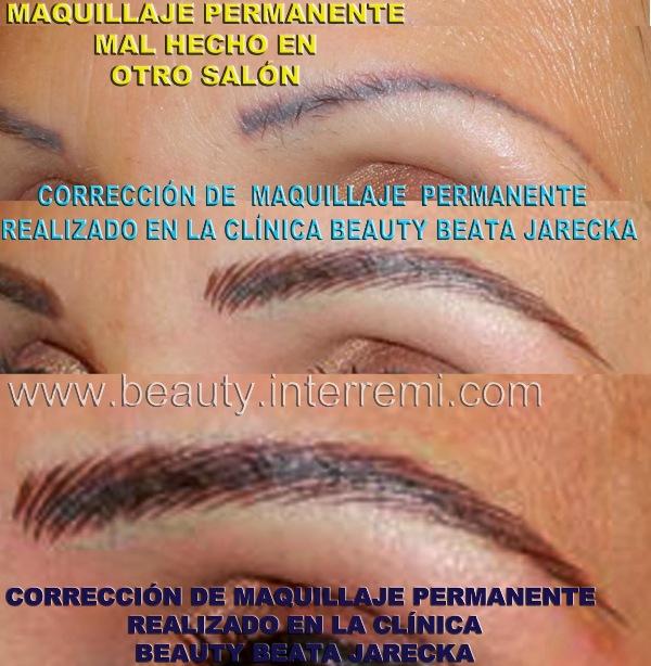 Los preparados de las arrugas menudas bajo los ojos
