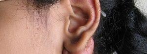 ¿Cómo evitar los queloides en las orejas?